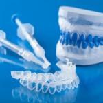 tẩy trắng răng tại nhà uy tín