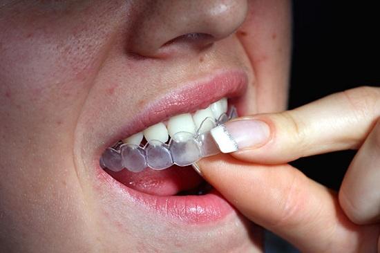Tẩy trắng răng tại nhà với máng tẩy trắng
