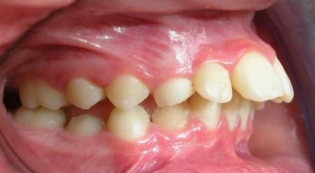 Niềng răng hô có gặp khó khăn gì không?