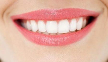 Bọc răng sứ có tốt hay không?