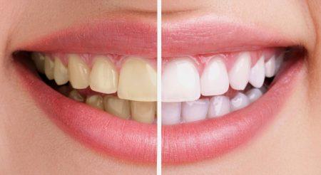Dịch vụ tẩy trắng răng thẩm mỹ