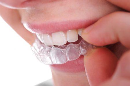 Làm sao để răng trắng nhanh
