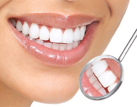 Tẩy trắng răng bằng laser whitening có hại không?