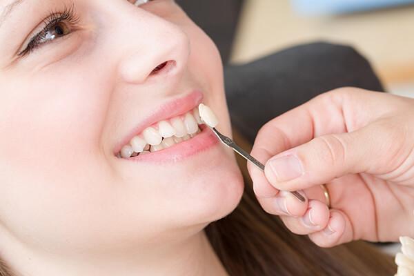 làm răng sứ veneer hiệu quả