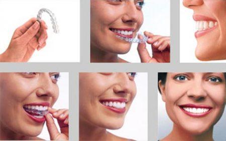 Niềng răng móm giá bao nhiêu?
