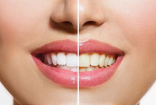 Tẩy trắng răng trong 1 tuần với cách làm nào hiệu quả? 1