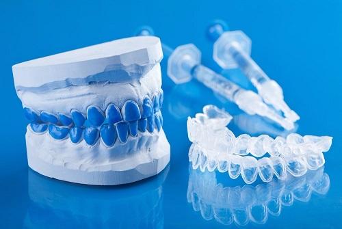 Tẩy trắng răng bằng máng bao nhiêu tiền? Chi phí hợp lý 1